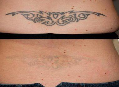 Последствия татуировки. Чем опасны татуировки? Последствия неправильного ухода за татуировкой